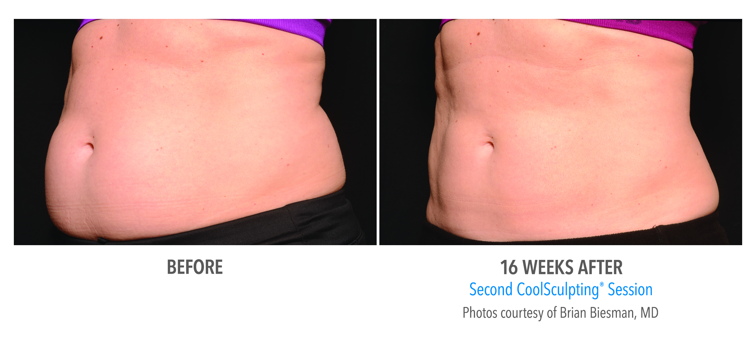 coolsculpting stomach fat reduction before and after