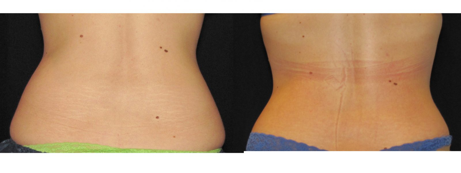 "Infinity Med Spa is the only ""Certified"" Coolsculpting Practice in Santa Clarita"