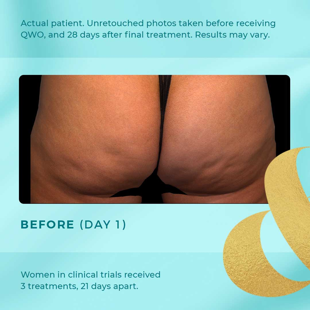 qwo cellulite before