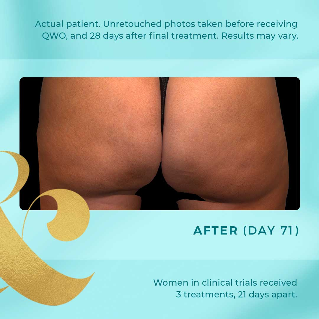 qwo cellulite after